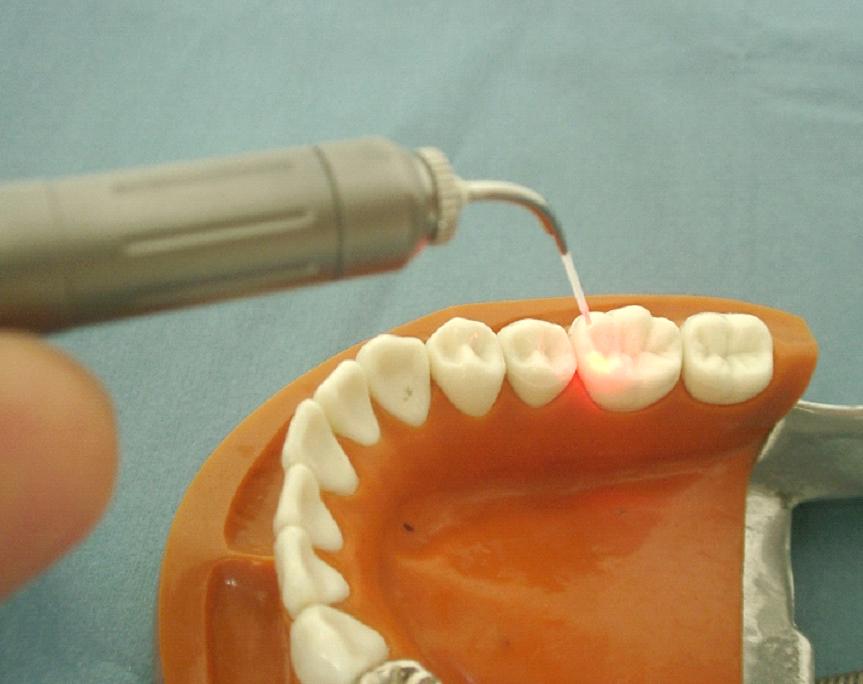 レーザーによる歯の治療